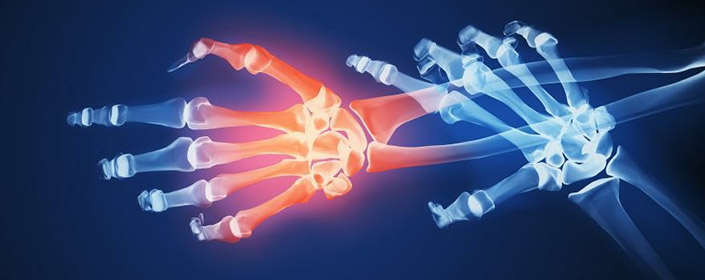 stem cell therapy for rheumatoid arthritis