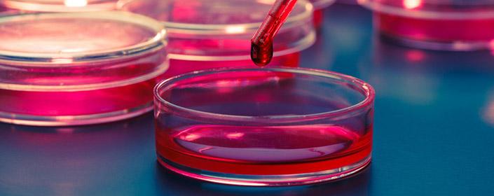 stem cells in petri dish