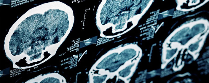 hbot and tbi brain injury