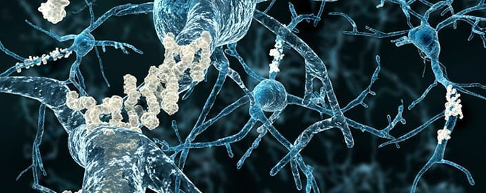 alzheimers amyloid plaques