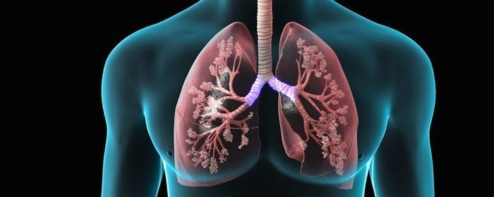 Study Reveals Mechanism by Which Stem Cells Improve Symptoms in Chronic Obstructive Pulmonary Disease (COPD)