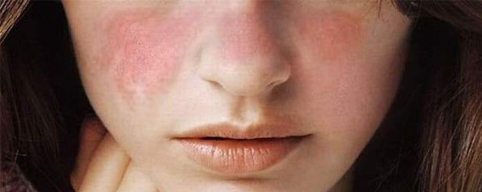 Lupus – What are the Signs and Symptoms?
