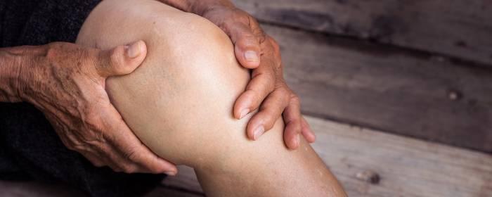 Mesenchymal Stem Cells for Osteoarthritis
