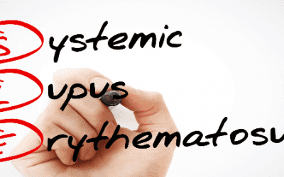 Mesenchymal Stem Cells Help Patients with Severe Systemic Lupus Erythematosus