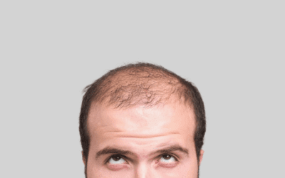 Considering Stem Cell Hair Restoration