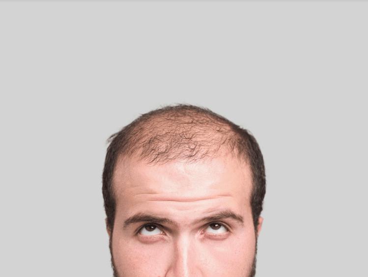 Considering Stem Cell Hair Restoration