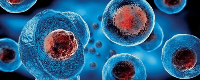 Using Stem Cells to Treat Nerve Damage in Multiple Sclerosis